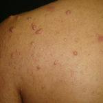 alessandro-santos-da-cruz-598294-589294-acne-com-queloides-8