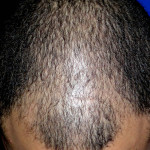 alopecia_androgenetica_gde_06