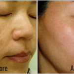 Spectra-Laser-Toning-Before-After-1