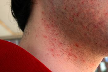 Orientações para prevenir inflamação da barba